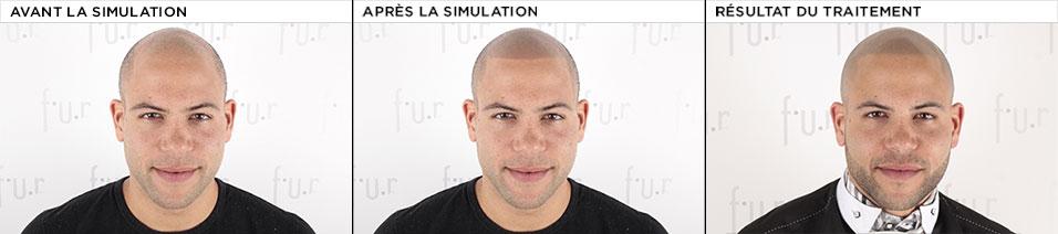 simulation FUR
